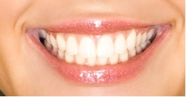 Picture of bonded teeth